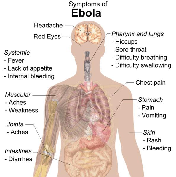อาการ อีโบลา