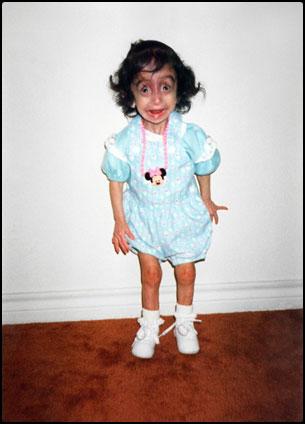 Lizzie Velasquez ในวัยเด็ก