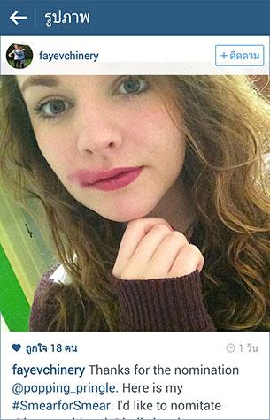 Instagram #SmearforSmear รณรงค์ตรวจมะเร็งปากมดลูก