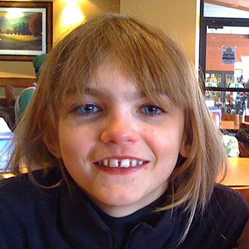Molly Bair จากเด็กที่เพื่อนล้อเป็นเอเลี่ยนกลายเป็นนางแบบ