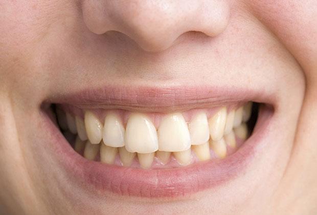 สาเหตุของฟันเหลือง