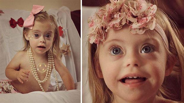 นางแบบเด็กซึ่งเป็นดาวน์ซินโดรม