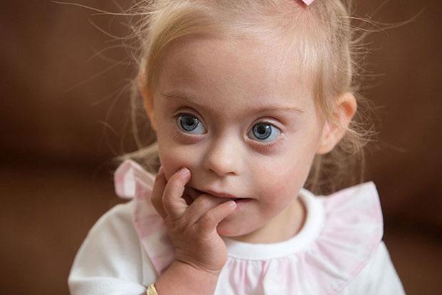 เด็กหญิงซึ่งเป็นดาวน์ซินโดรมคว้าตำแหน่งเด็กยิ้มสวย