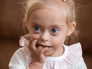 เด็กหญิงผู้เป็นดาวน์ซินโดรมคว้าตำแหน่งหนูน้อยยิ้มสวย