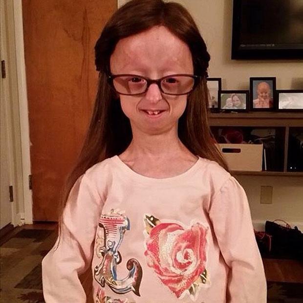 สาวน้อยผู้ป่วยโรคชราในเด็กเป็นเพื่อนซี้กับนักยกน้ำหนัก