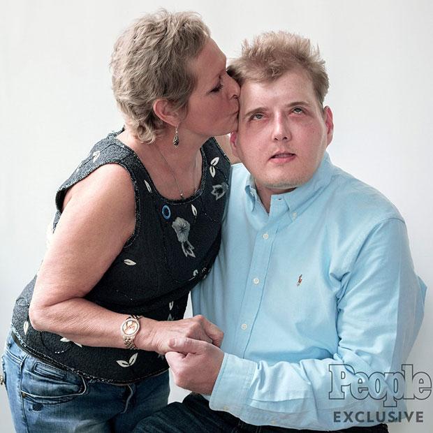 นักดับเพลิงผู้ผ่าตัดเปลี่ยนใบหน้ากำลังจะได้พบกับแม่ของผู้บริจาค