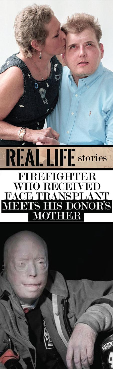 นักดับเพลิงผู้ได้รับการผ่าตัดเปลี่ยนใบหน้า