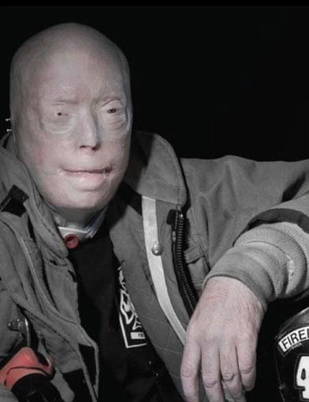 นักดับเพลิงผ่าตัดเปลี่ยนใบหน้าพบกับแม่ของผู้บริจาค