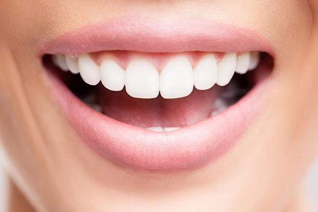 ฟันขาวปิ๊งด้วยวิธีตามธรรมชาติ